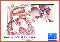 4-Forame Oval Patente-artigo
