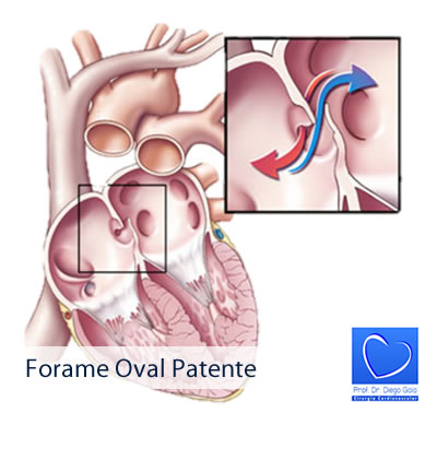 forame-oval-patente