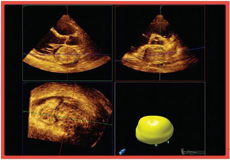 Ecocardiografia Transtorácica 3D