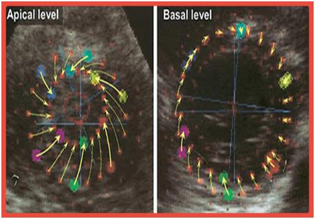 Ecocardiografia de Strain Longitudinal, Radial, Circunferencial, Torção e Twist