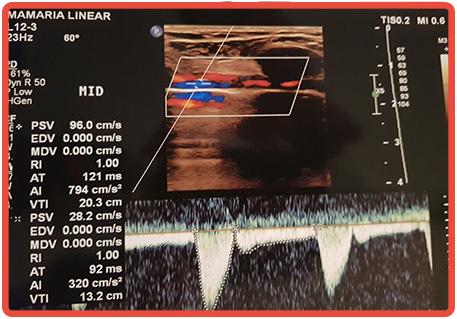 Eletrocardiograma de Repouso Computadorizado